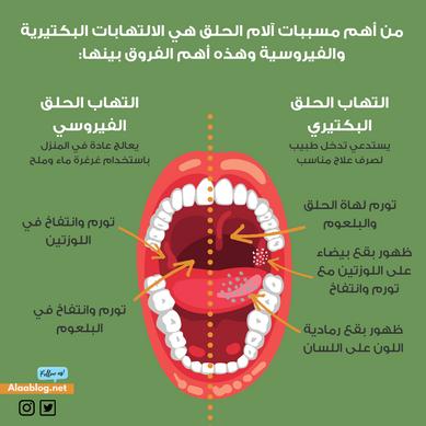 التهاب الحلق البكتيري.png
