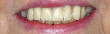 Dentures Direct Before 4.jpg