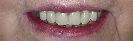 Dentures Direct After 4.jpg