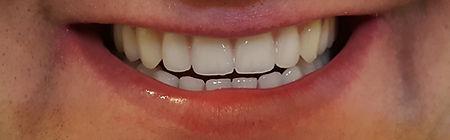 Dentures Direct After 5.jpg