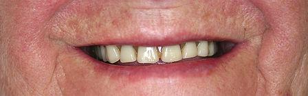 Dentures Direct Before 1.jpg