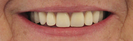 Dentures Direct After 3.jpg
