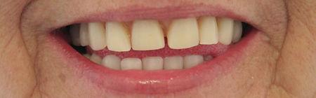 Dentures Direct Before 3.jpg