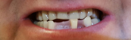 Dentures Direct Before 5.jpg