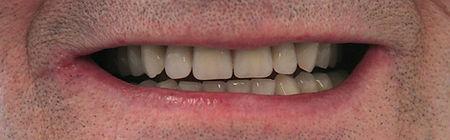 Dentures Direct After 2.jpg
