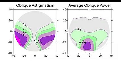 Oblique Astigmatism-1.png