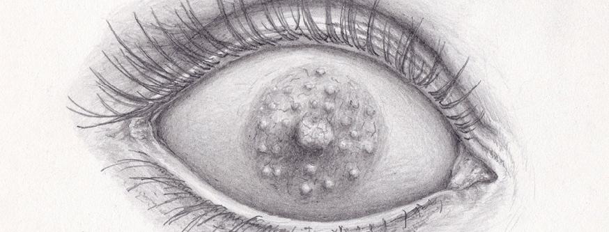 Boob eye