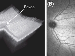 Eye Imaging with new Electrically-Pumped MEMS-VCSEL