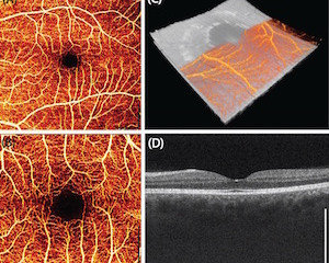 Wideband Electrically Pumped 1050-nm MEMS-Tunable VCSEL for Ophthalmic Imaging