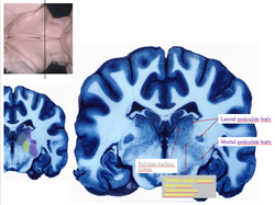 Thalamic nuclei sections 3
