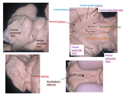 Thalamic nuclei . dissection