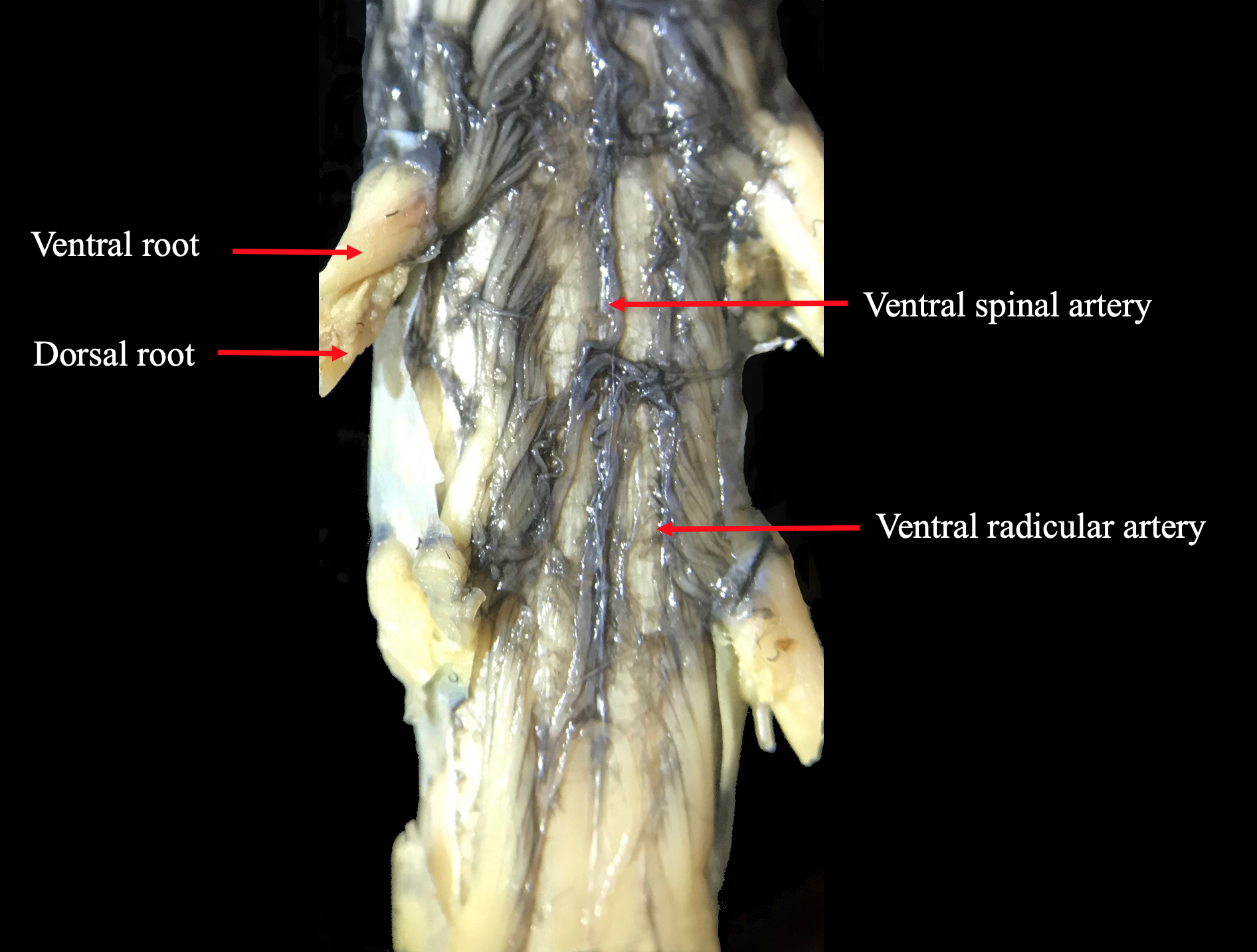 Ventral spinal artery