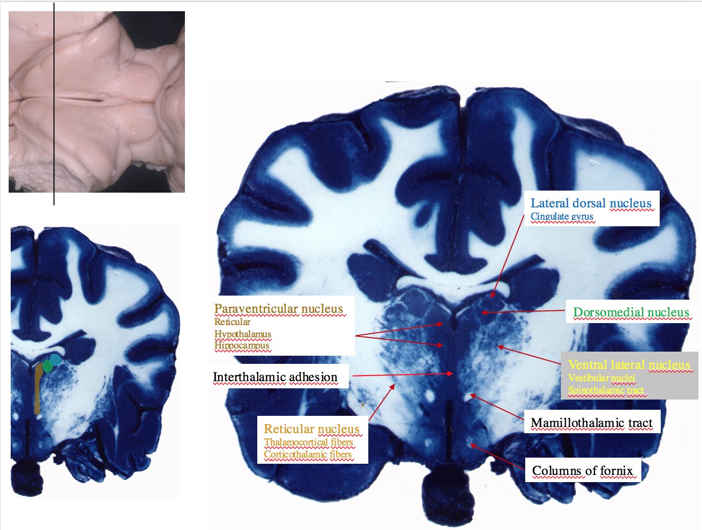 Thalamic nuclei sections 2