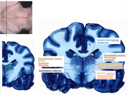 Thalamic nuclei sections 1