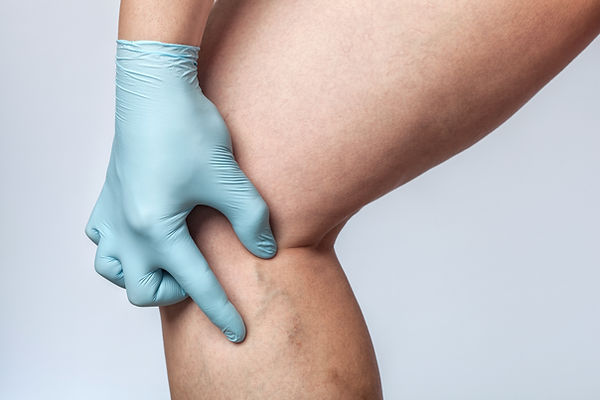 SCLEROTHERAPY WEBSITE PHOTO.jpg