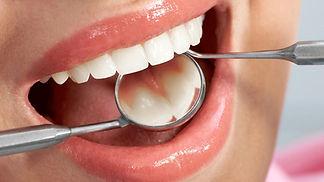 les-soins-dentaires-moins-cher-en-2018.j