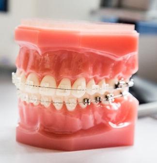 Orthodontie_FAQ_dentiste_Laval_edited.jpg