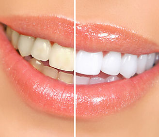 Esthetique-dentaire.jpg