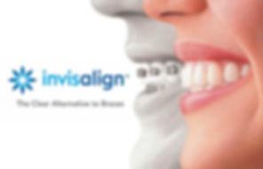invisalign-logo.jpg