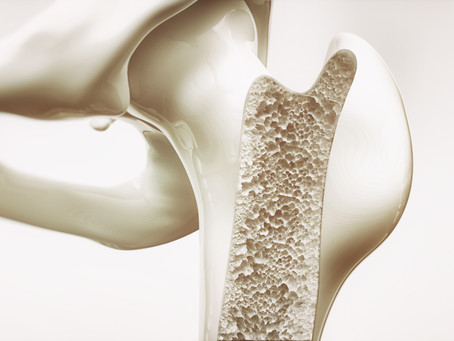 Osteoporosis Treatment: Nutritional Supplement