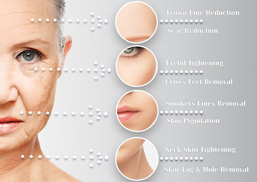 Fibroblast-Plasma skin tightening-neck lift-wrinkles treatment-collagen stimulation