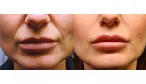 Wrinkles Treatment-Anti Aging