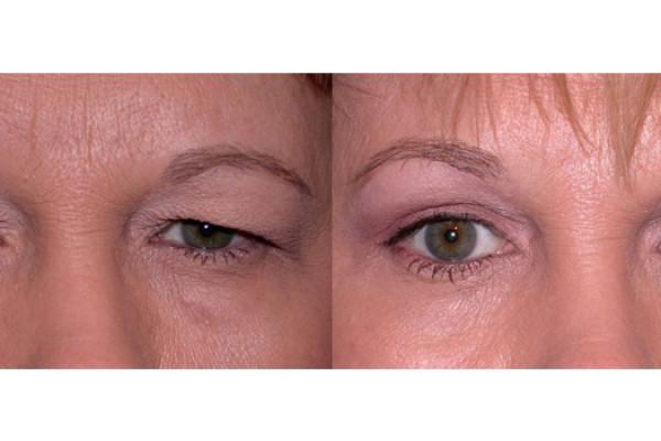 Eye Lid Tightening, Eyebrow Lift