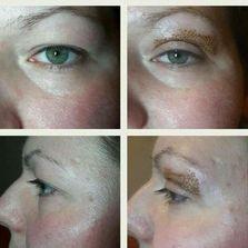 Eye Lid Lift-reconstruction tightening