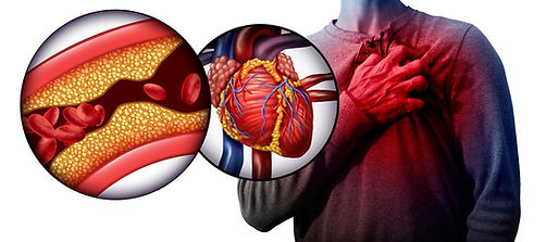 10 Best Researched Foods That Can Prevent You From 70% Of Heart Diseases, So Make The Right Choice!