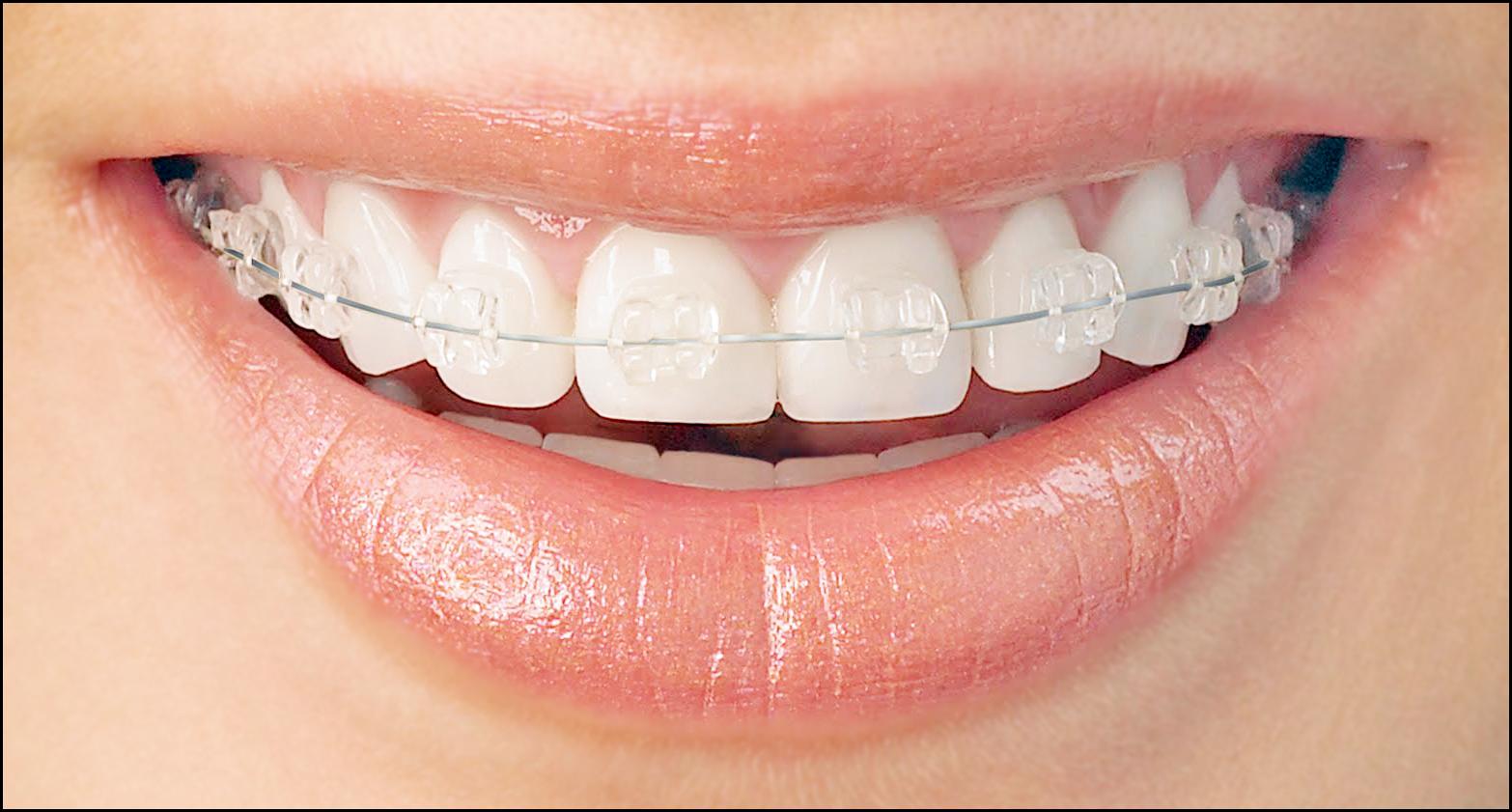 Ortodonti - Diş Teli