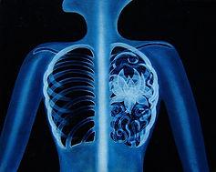 Huile sur toile, peinture, Garance Monziès, radiographie, lotus, bleu, colonne, cage thoracique, racines