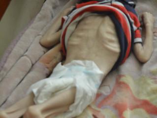 Children in Yemen are steps from death