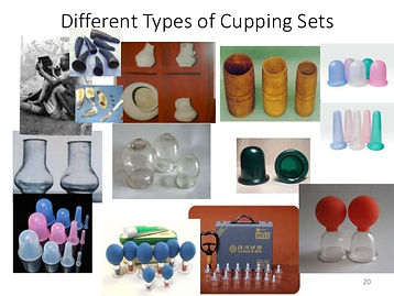 cupping-therapyforskindiseases-20-638.jp