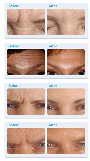 wrinkle-before-after.jpg