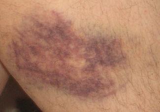 bruise dance.jpg