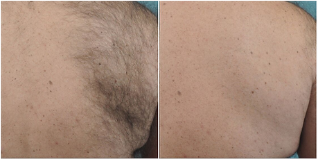 Before And After Laser Hair Removal at T