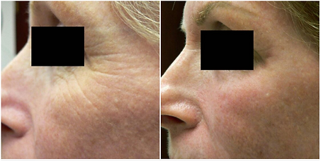 Before And After 1540 Skin Resurfacing a
