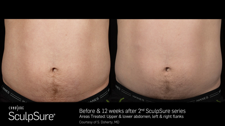 Before And After SculpSure Warm Sculptin