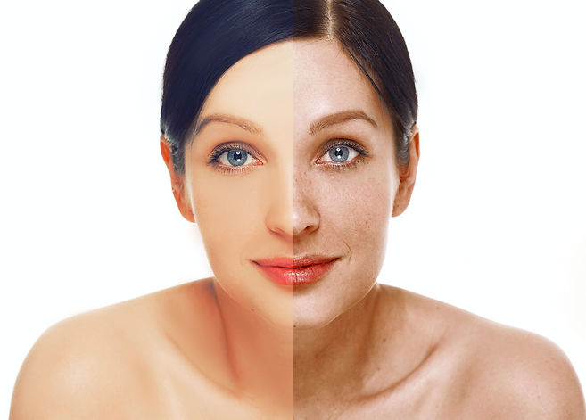 Laser Treatments & Services for Younger