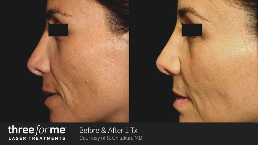 Before And After Three For Me - True at