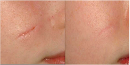 Before And After Laser Scar Removal at T