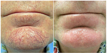 Before & After Max G IPL Photofacial