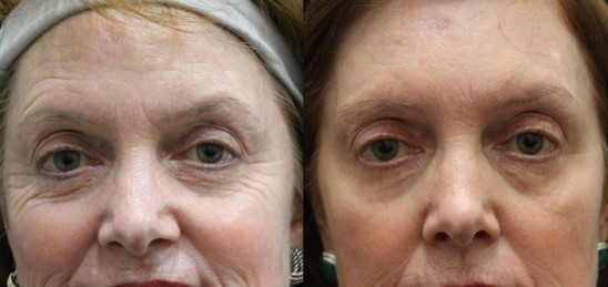 Before & After Laser Skin Resurfacing