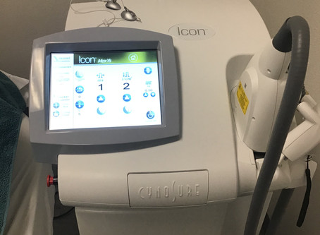The Icon Laser System