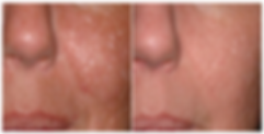 Before And After Acne Scar Removal Treat