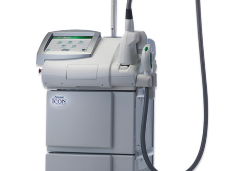 IPL Photofacial Treatments With The Icon Laser System