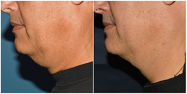 Before And After WarmSculpting at The Wo