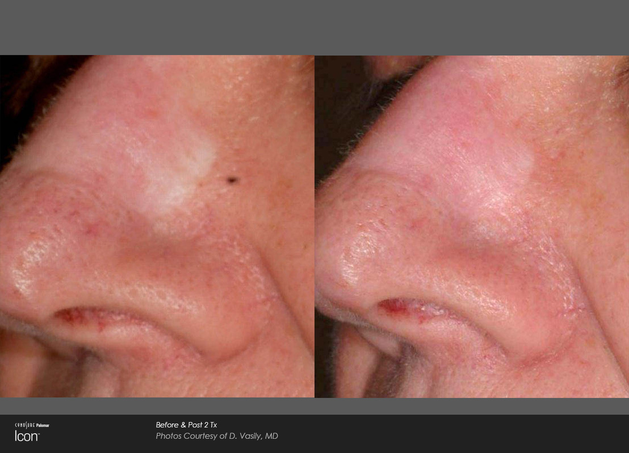 Before And After Laser Scar Removal - No