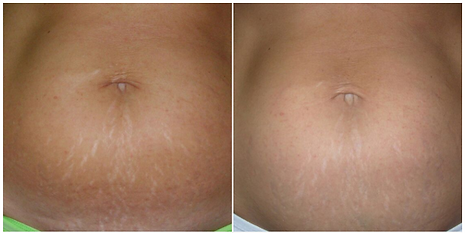 Before And After Stretch Mark Reduction