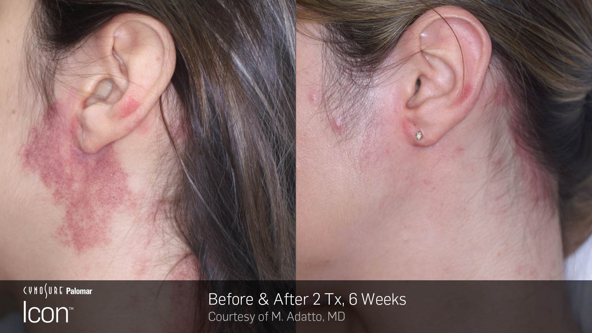 Before And After Laser Skin Revitalizati